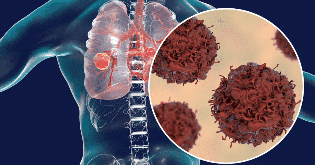lung cancer caused by asbestos